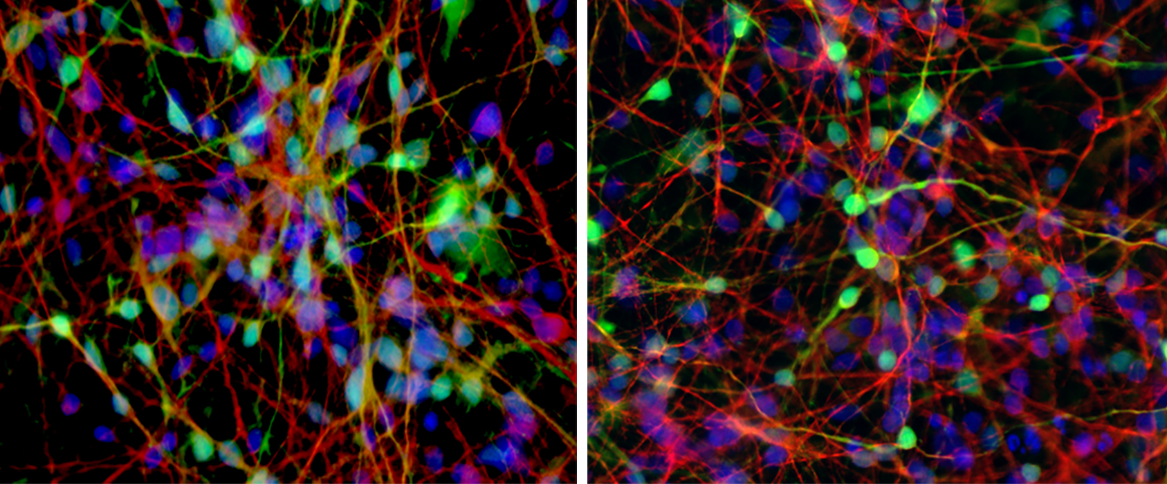 Neurons derived from bipolar patients