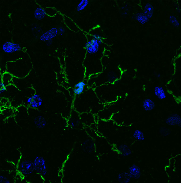 Corpped-P35-microglia-2-grid
