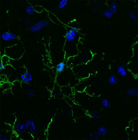 Salk and UC San Diego scientists conducted a vast survey of microglia (pictured here), revealing links to neurodegenerative diseases and psychiatric illnesses.
