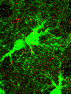 Fluorescently labeled astrocytes (large green structures) and neuronal postsynaptic receptors (red).