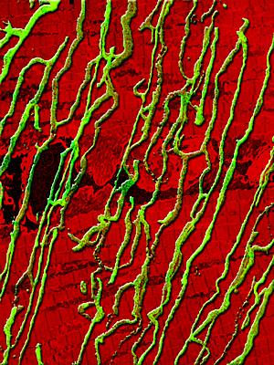 Genetic enhancement of skeletal muscle blood supply