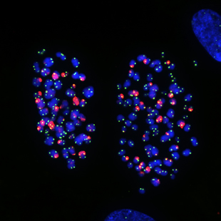 chromosomes in human lung cells