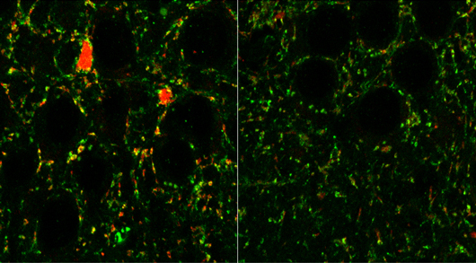 mGluR5 receptors in the mouse brain