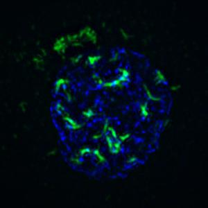 adenovirus protein