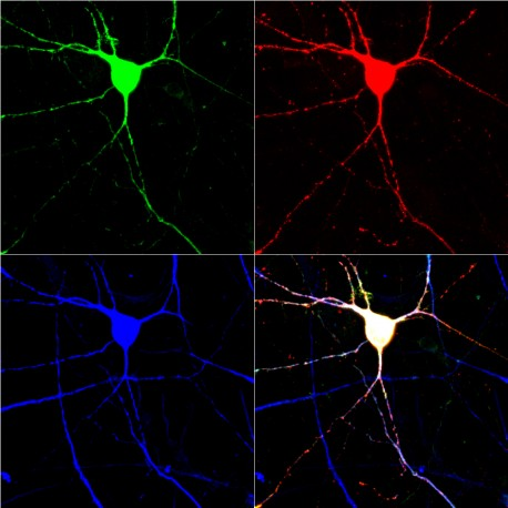 Scientists have created serotonin-signaling neurons from human skin cells