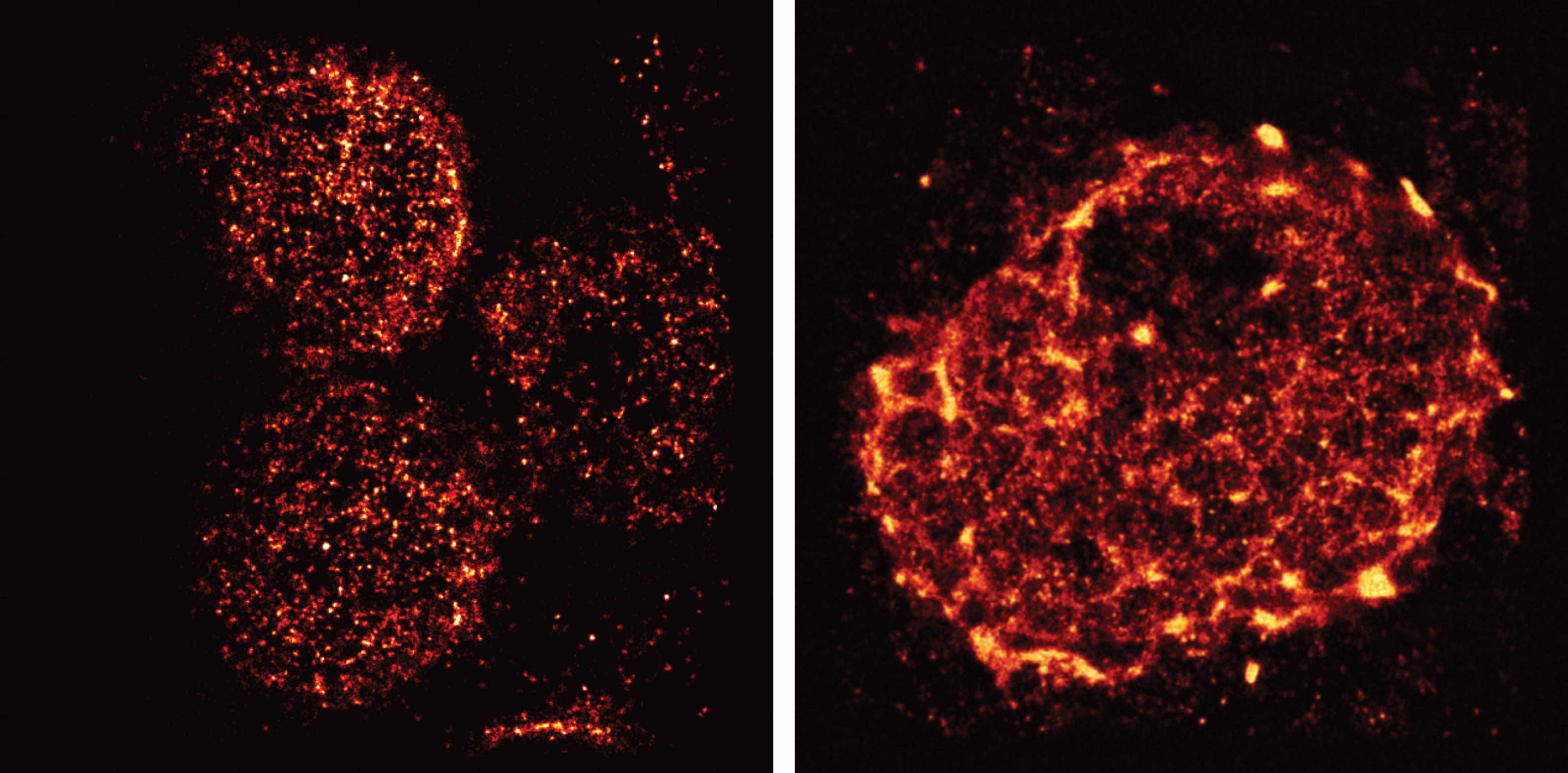 Super Resolution Microscopy Reveals Unprecedented Detail