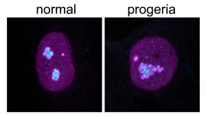 Nucleoli in the cell nucleus, stained bright magenta and cyan against the purple backdrop of the nucleus, are enlarged in the progeria cell (right) compared to the normal cell (left).