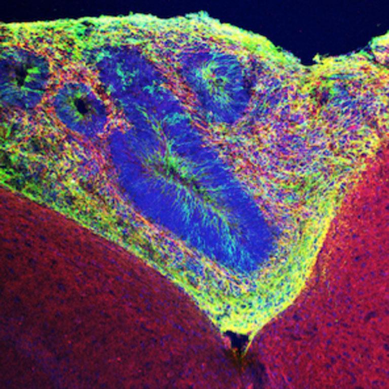 Human-organoid-tissue-767