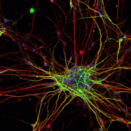 This image shows a two-dimensional culture of subject-derived cortical neurons stained for neuronal markers MAP2 (red) and Tuj1 (green).