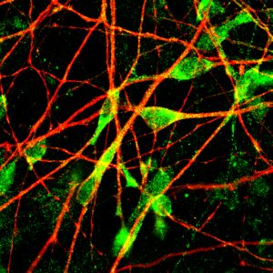 Human serotonergic neuron projections (red) and cell bodies (green).