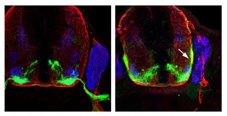 Left: Motor neurons (green) exit the spinal cord (red) and enter the periphery of the body to connect with muscles. Right: Motor neurons (white arrow) without the guidance of p190 are trapped within the spinal cord.