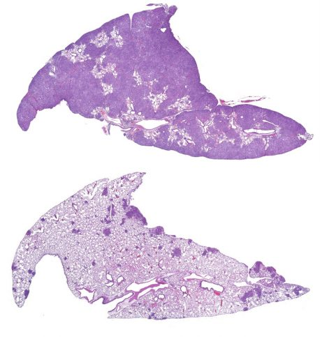 Salk researchers discovered that CREB and its partner, CRTC2, are activated in a subset of non-small-cell lung cancer tumors. The image on the top shows lung tumors (dark purple) in control-group mice compared to those that lack CRTC2 (bottom), which suggests the therapeutic potential for drugs that can interfere with CREB or CRTC2 in this subset of patients.