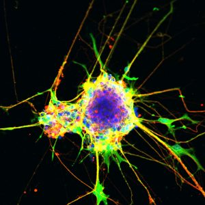 Neurons generated using the cell culture method described in the paper.