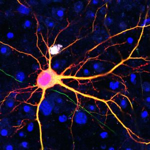 Neuron targeted using the SATI technology.