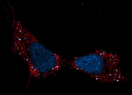 Pictured are mitochondria (red), cell nuclei (blue) and mtDNA (white dots).