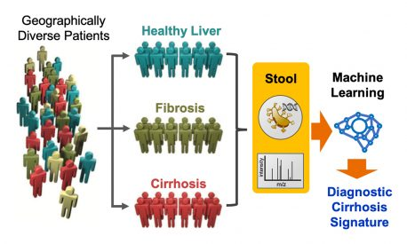 Schematic showing how the microbiome signature from stool samples can be used to test for cirrhosis.
