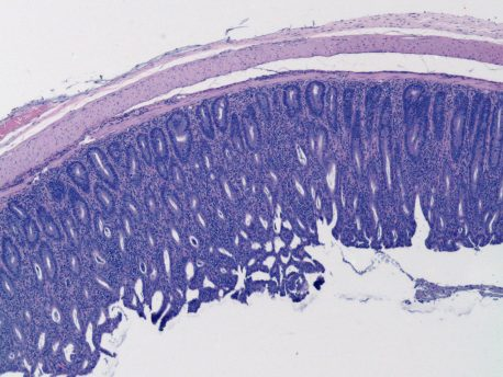 A histology image showing inflammation in colon epithelium. Weakening of regulatory T cell function induces infiltration of immune cells (small blue dots) into colon epithelium (blue layer) and causes colitis.