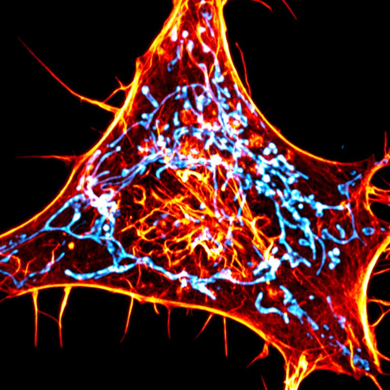 A cancer cell labeled for actin (red) and mitochondria (cyan). The scientists designed novel probes that specifically monitor interactions between actin and mitochondria.