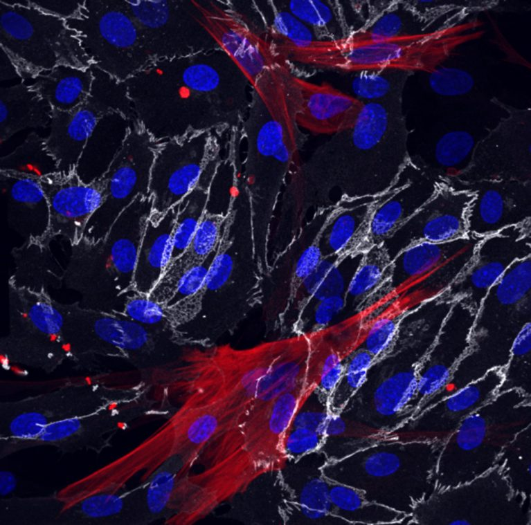 Skin fibroblasts were successfully reprogrammed into the smooth muscle cells (red) and endothelial cells (white) which surround blood vessels. The cells' nuclei are shown in blue.