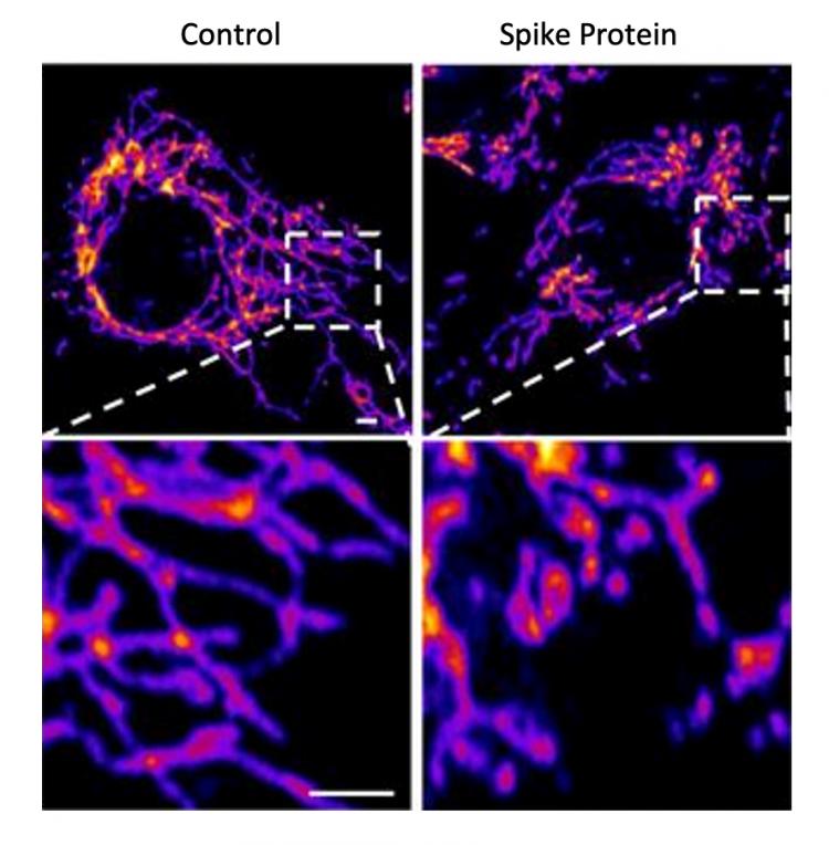Изображения контрольных клеток эндотелия сосудов (слева) и клеток, обработанных Spike-белком SARS-CoV-2 (справа), показывают, что Spike-белок вызывает повышенную фрагментацию митохондрий в клетках сосудов