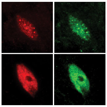 Nuclei of plant cells are seen before and after the plant was exposed to shade. In the top images (before), the transcription factor PIF7 (red) is confined in speckles that contain the plant's light sensors (green). In the lower images (after), in the shaded plant, PIF7 is released, which is then free to bind to DNA and initiate gene activity.